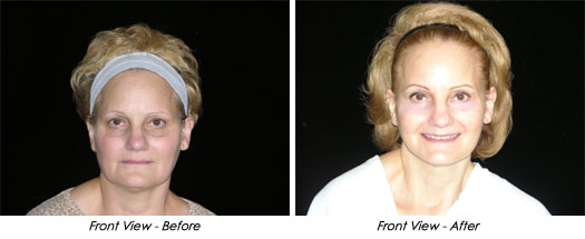 small scar facelift