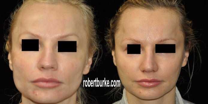 Non-Surgical Jaw Reduction Using Botox