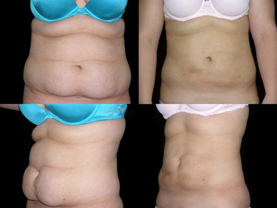 Getting Rid Of Belly Fat Smartlipo Vs Tummy Tuck Ahb