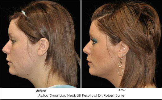 smartlipo neck lift alternative before after
