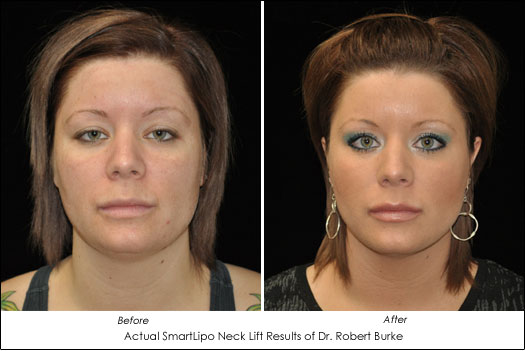 smartlipo neck lift alternative results