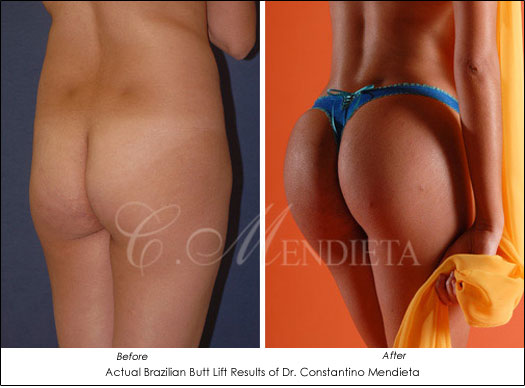 Brazilian Butt Lift Before After Results