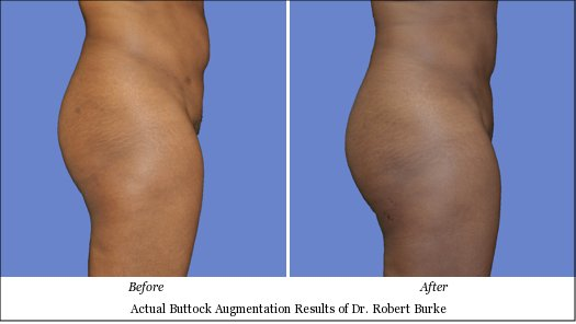 buttock augmentation before after photos