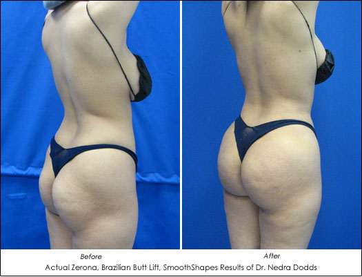 brazilian butt lift before after photos