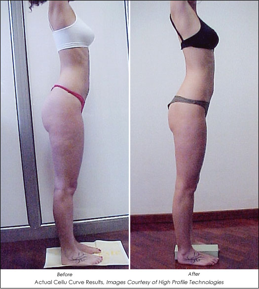 cellulite treatments houston