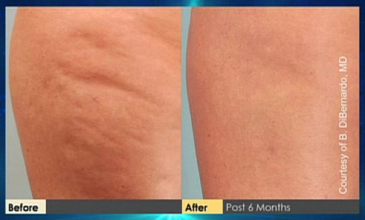 before after cellulaze results