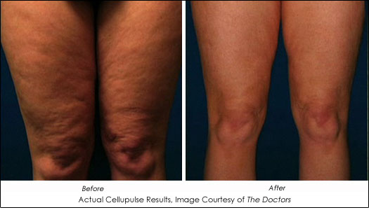 Med Spa Cellulite Treatment