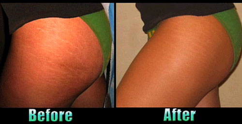Laser Stretch Marks