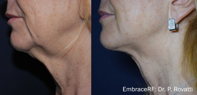 EmbraceRF Non-Surgical Facelift
