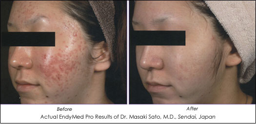 endymed pro before after photos acne scarring