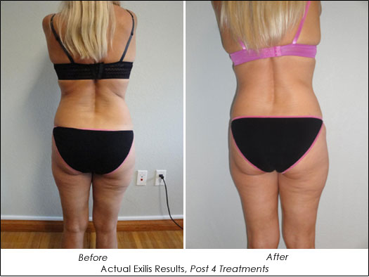 exilis before and after