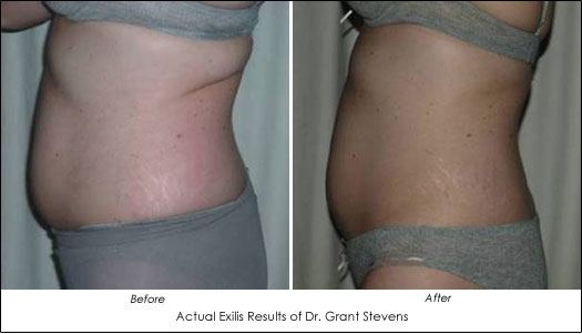 exilis before after results