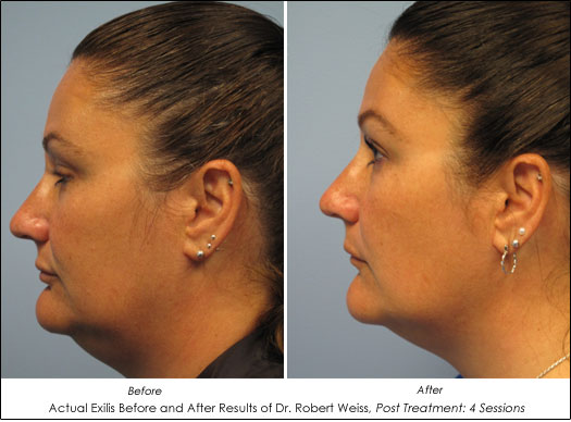 before after photos exilis dr robert weiss