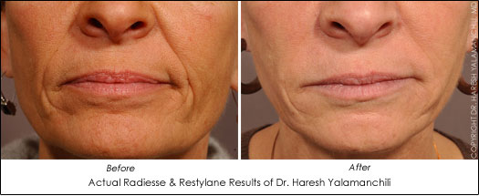 houston facial filler radiesse restylane results