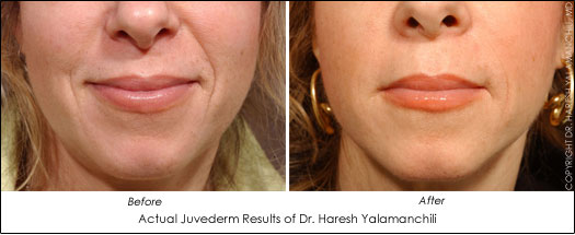 houston juvederm results