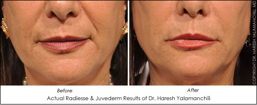 houston facial filler results