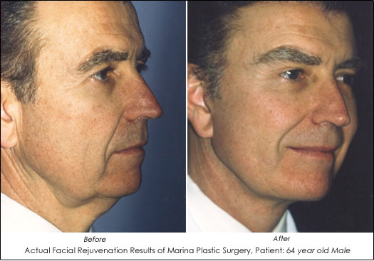 Actual Male Facial Rejuvenation before after results