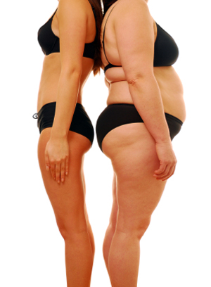 weight loss for obese patients