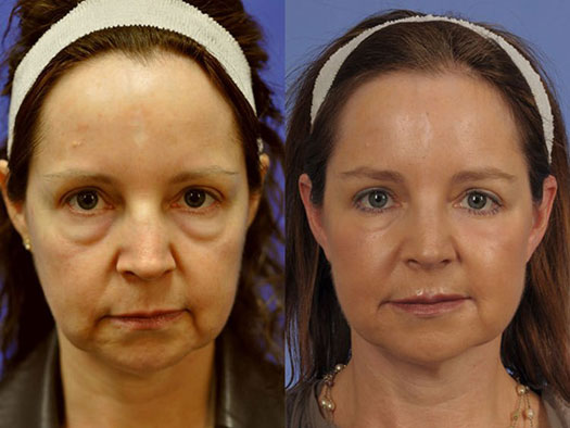 Before and After Photo of Woman with Festoons