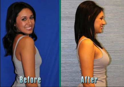 After breast augmentation recovery