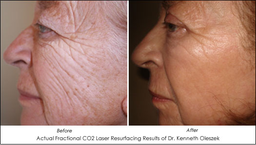 fractional co2 laser resurfacing results