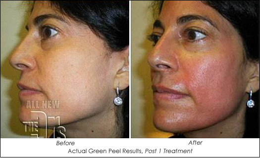 Organic Green Peel Before After