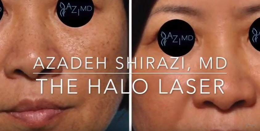 before & after photos of Halo Laser - Dr. Azadeh Shirazi