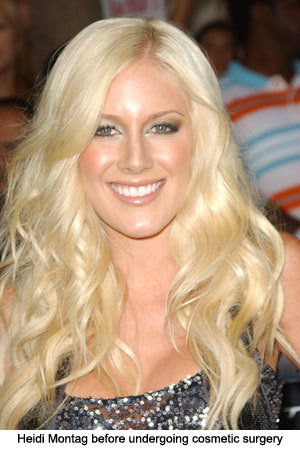 heidi montag surgery gone wrong. heidi montag plastic surgery