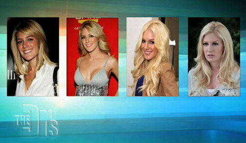 Heidi Montag's Cosmetic Surgery Transformation