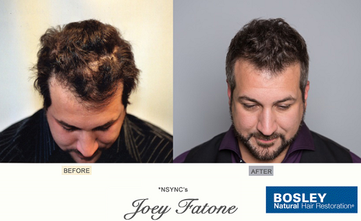 Joey Fatone Before and After Hair Restoration