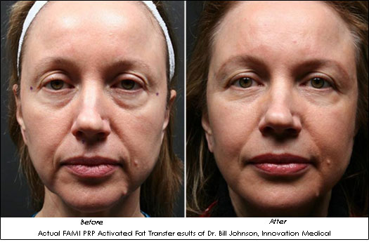 Dr. Bill Johnson FAMI Fat Transfer Before After