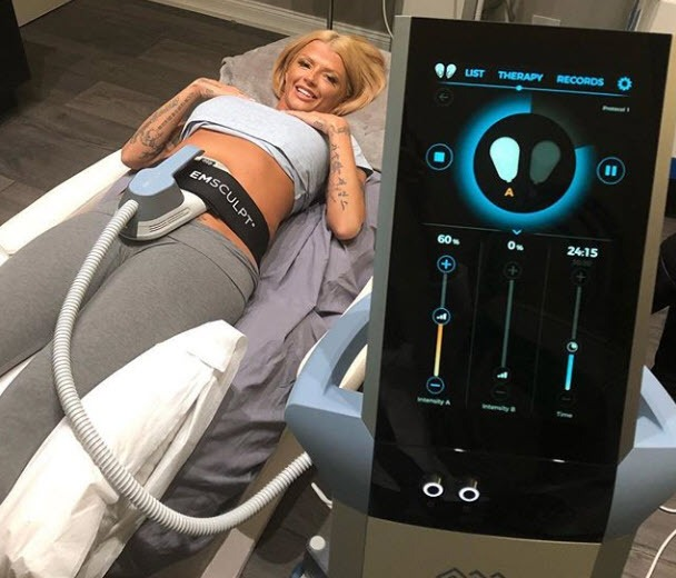 Joslyn James Receives Emsculpt Treatments