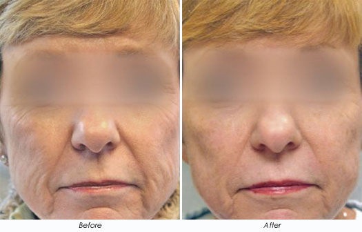 Kaminer Gold ProFractional Before After