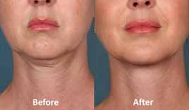 SHORT Kybella Before and After Results