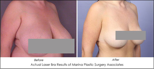 laser bra before after