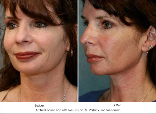 Laser Facelift Tighten And Rejuvenate With Shorter
