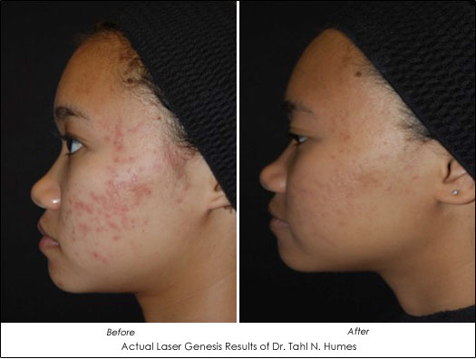 Treatment For Rosacea And Diffuse Redness Ahb