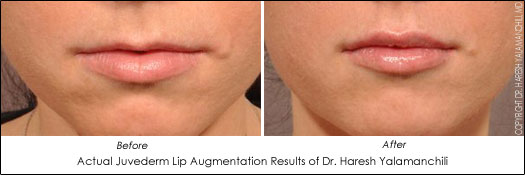houston lip augmentation filler juvederm results