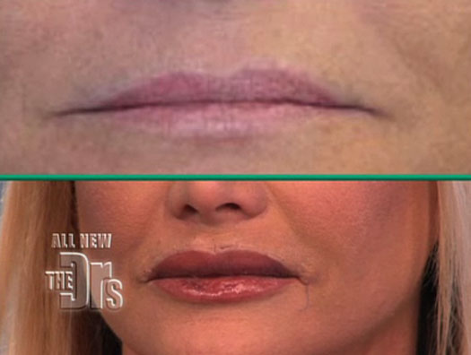 angel wing lip augmentation