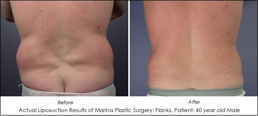 male liposuction before after results