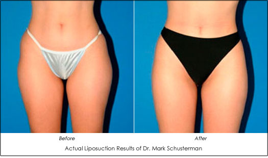 Dr. Mark Schusterman Liposuction Results Before and After