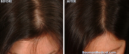Can The Hairmax Lasercomb Help Reduce Hair Loss And