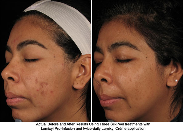 Lumixyl Improves the Appearance of Hyperpigmentation - AHB