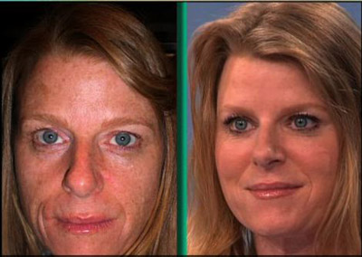 Actual Photos of Lunchtime Facelift as seen on The Doctors