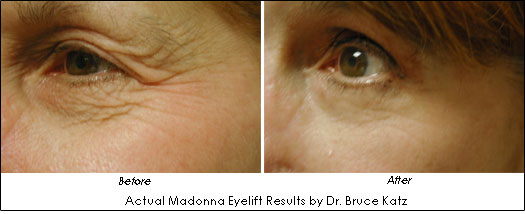 Actual Results of Madonna Lift by Dr. Bruce Katz