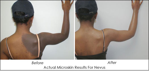 Dr. Lori Brightman Microskin Results for Nevus