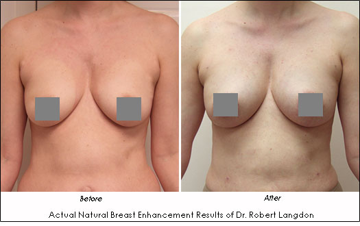 Natural Breast Enhancement Dr. Robert Langdon Before and After