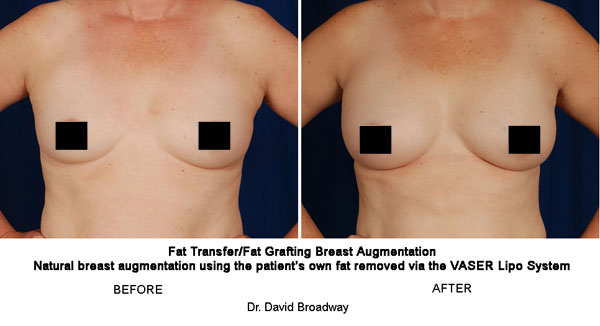 Natural Breast Augmentation Stem Cells And Fat Transfer In Lieu
