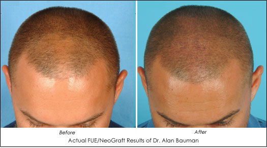 Dr. Alan Bauman FUE NeoGraft Before After