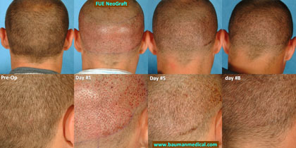 Before and After Photo of NeoGraft Hair Transplant Procedure